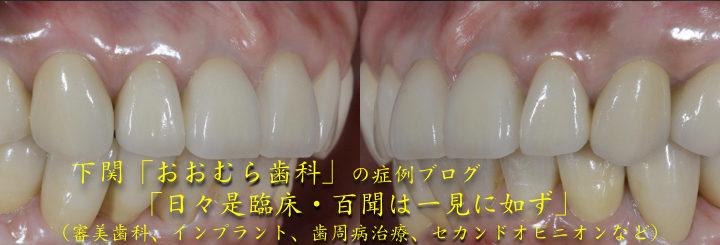 下関 おおむら歯科医院の症例ブログ「日々是臨床・百聞は一見に如ず」(審美歯科、インプラント、歯周病治療、セカンドオピニオンなど)